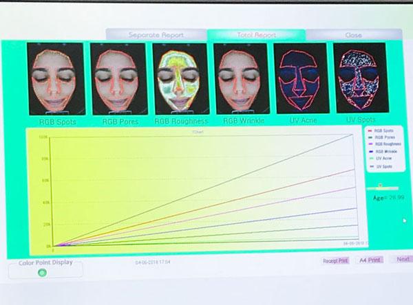 scanner facial madrid