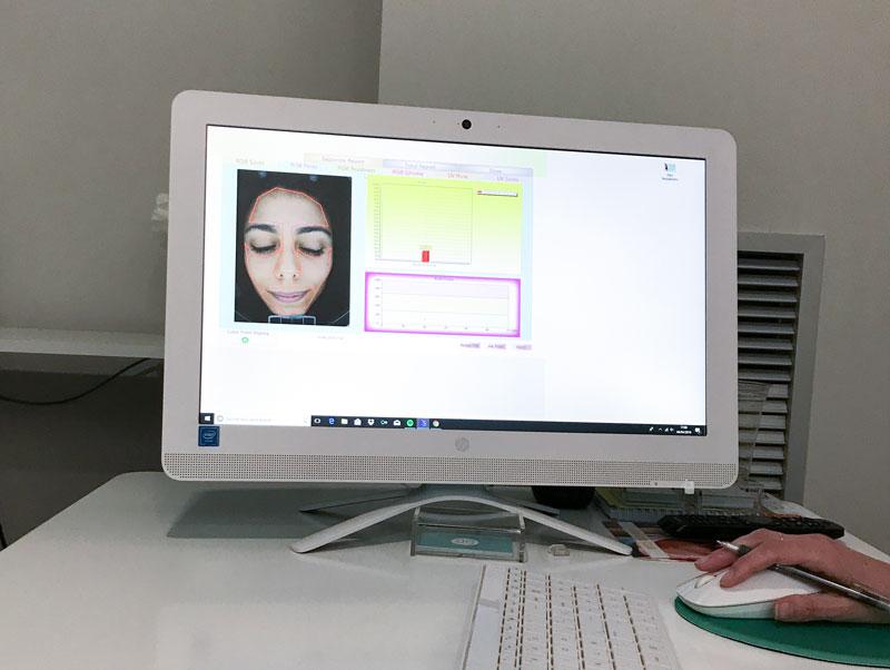 scanner facial en Madrid